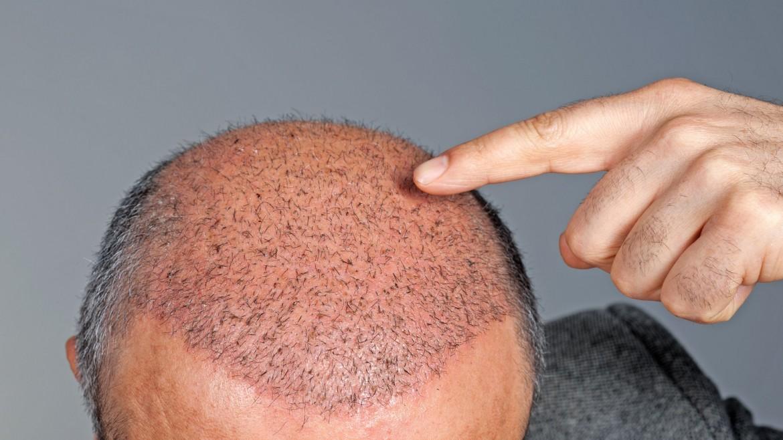 რა ღირს თმის გადანერგვა და როგორ ანგარიშდება ფასი?  tmis gadanergva