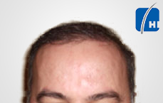 hair transplantation after