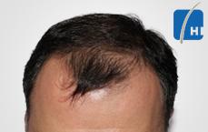 თმის გადანერგვამდე და შემდეგ hair transplant before and after