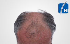 hair transplantation before