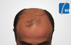 hair transplantation before