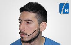 წვერის გადანერგვამდე და შემდეგ hair transplant before and after