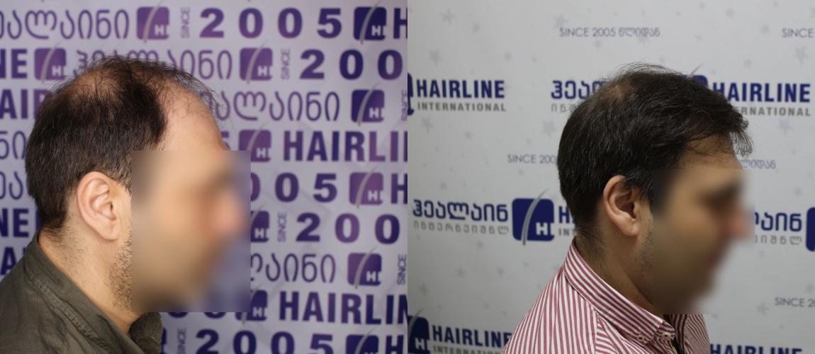 თმის გადანერგვა tmis gadanergva hair transplant